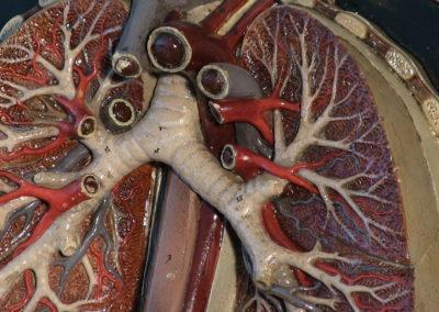 Albero bronchiale e polmone.
