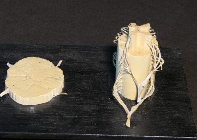 Modello del midollo spinale, con sezione. 2