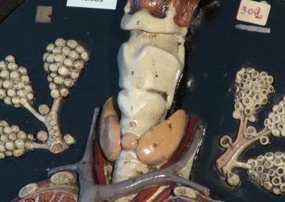 Modello di trachea e polmoni (particolare), 2
