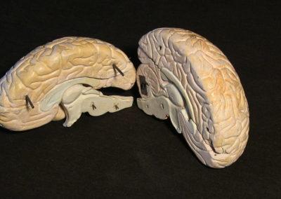 modello del cervello (sezione longitudinale a livello della scissura centrale),3
